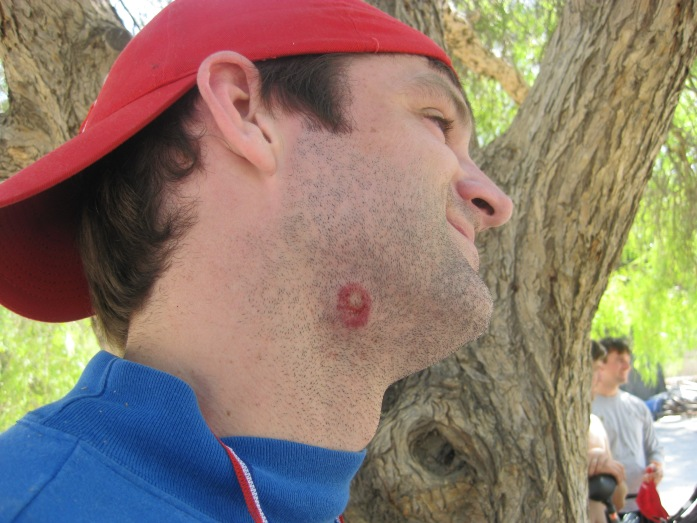 Unless you get paintball welts all over you that look like hickies.  LOL